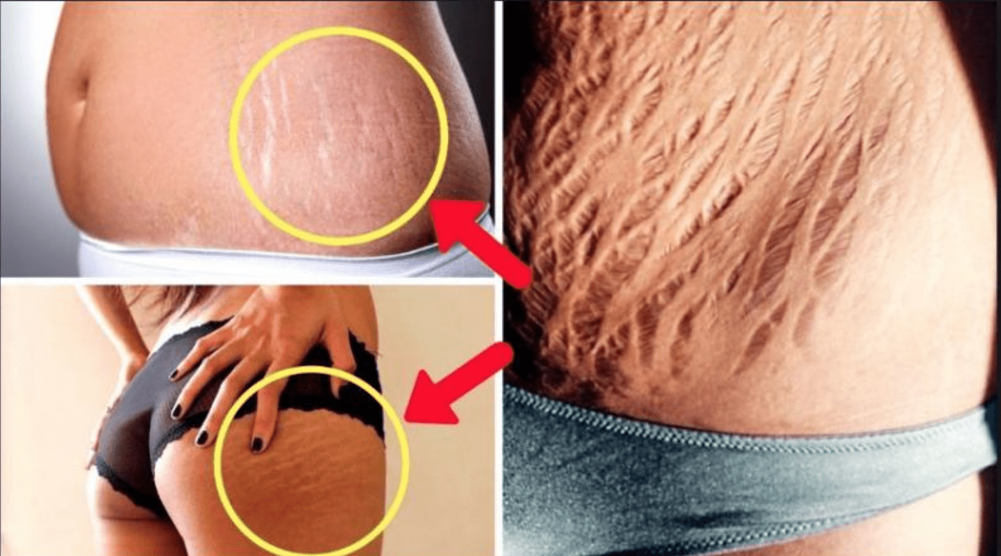 Stretch marks are visible greenish lines on the skin surface,