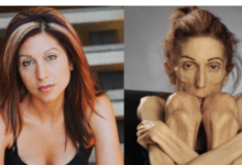 Farrokh, 37 yr old Woman battling anorexia pleads for help through social media