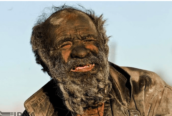 Iranian man who hasn't bathed for over 60 yrs